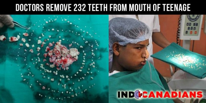 Doctors Remove 232 Teeth From Mouth Of Teenage Boy in Maharashtra