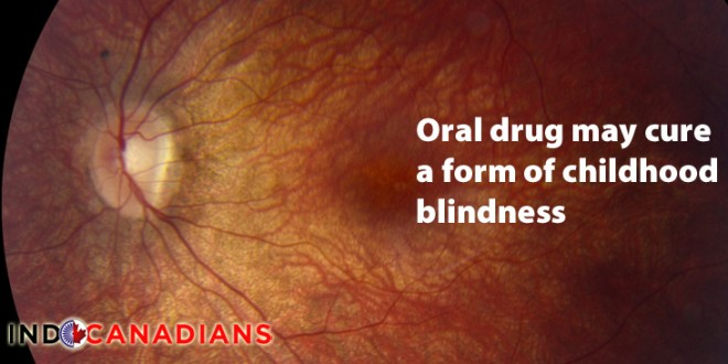 Oral drug may cure a form of childhood blindness